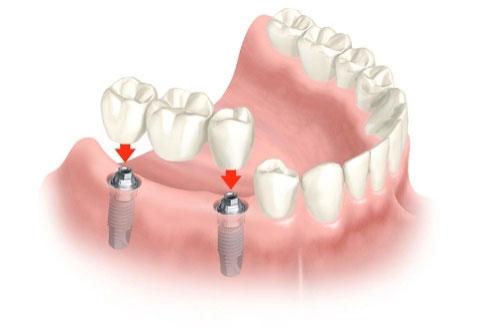 fogászati implantátum debrecen